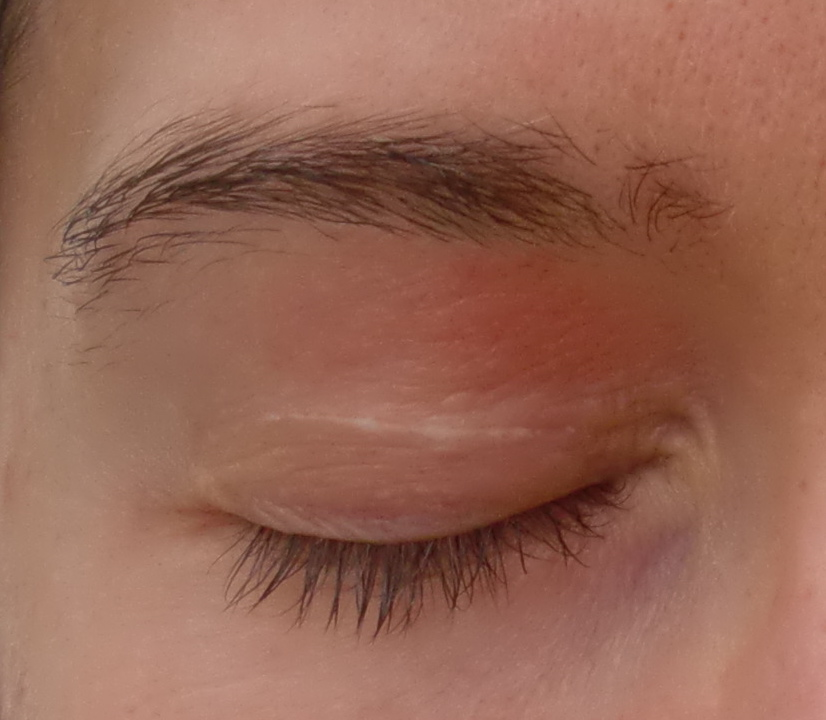 Red Dry Skin On Eyelid